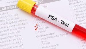Wie sicher ist der PSA-Test? Was der Wert über Prostatakrebs aussagt
