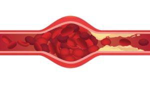 Verkalkte Adern: So tückisch ist Arteriosklerose