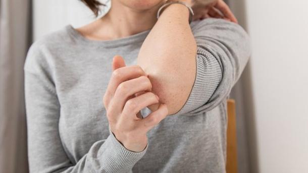 Schuppenflechte: Diese Therapieformen können helfen