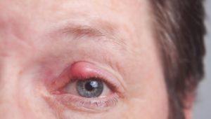 Gerstenkorn: Symptome und Behandlung