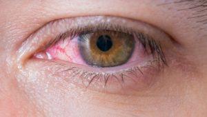 Augenherpes: Ansteckung, Symptome, Behandlung