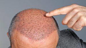 Haarausfall: Wann eine Haartransplantation infrage kommt